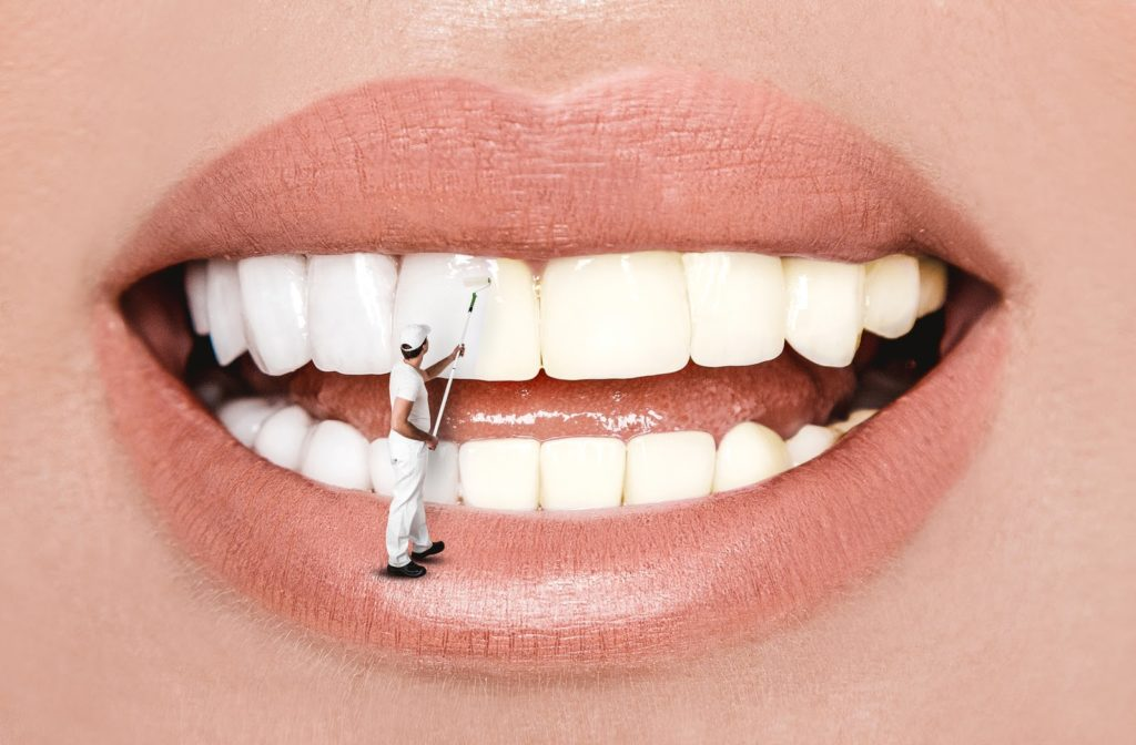 Woman smiling as a tiny man stands on her lower lip and uses a paint roller to whiten her teeth
