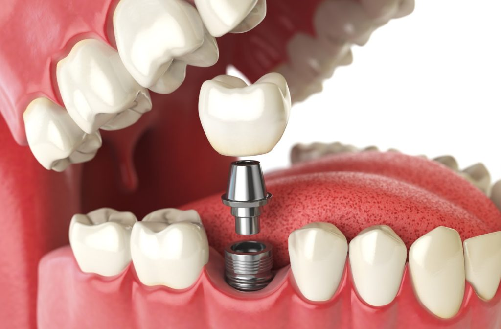 Rendering of crown on top of dental implant in side view of human mouth