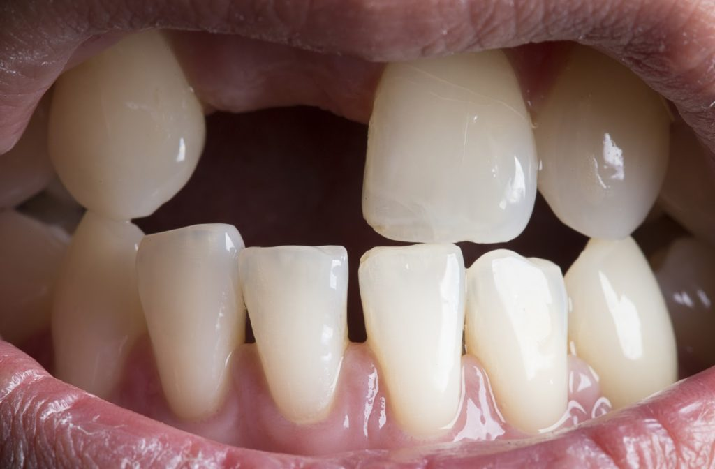Human mouth with bared teeth and upper right front tooth missing