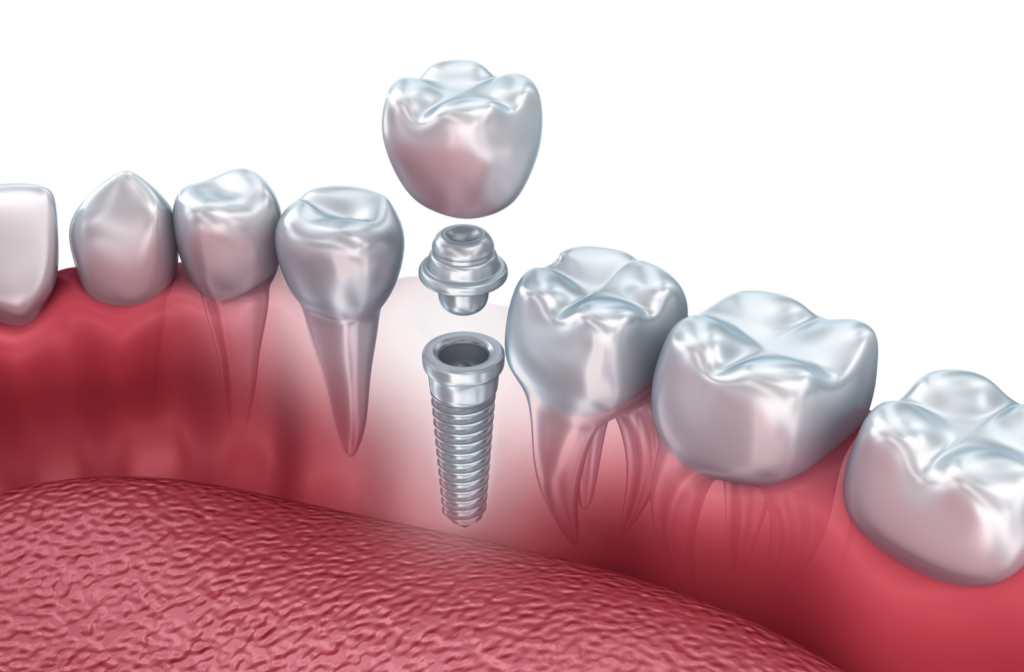 Rendering of dental implant including metal root, abutment, and artificial tooth