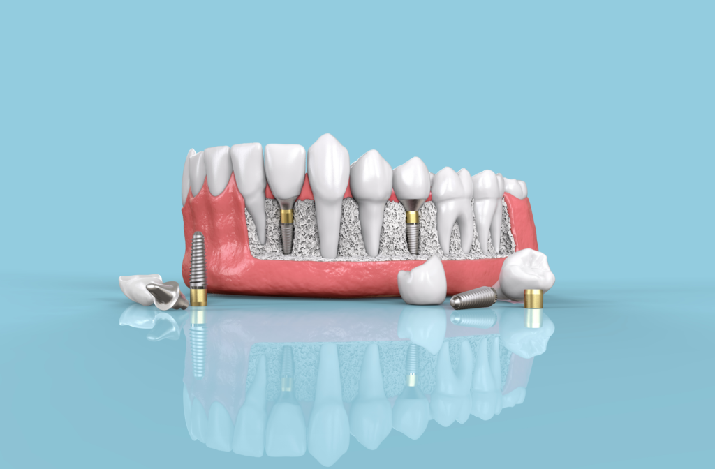 Rendering of lower jaw with several dental implants