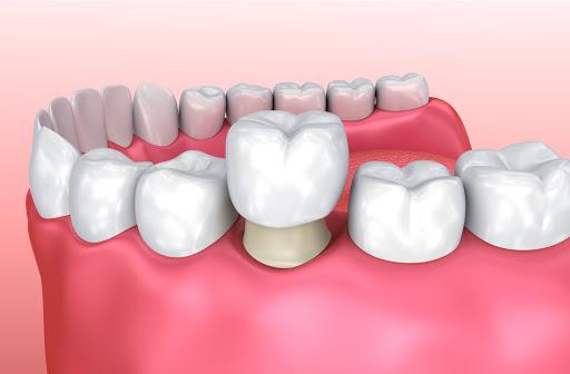 3D illustration of a dental crown installation
