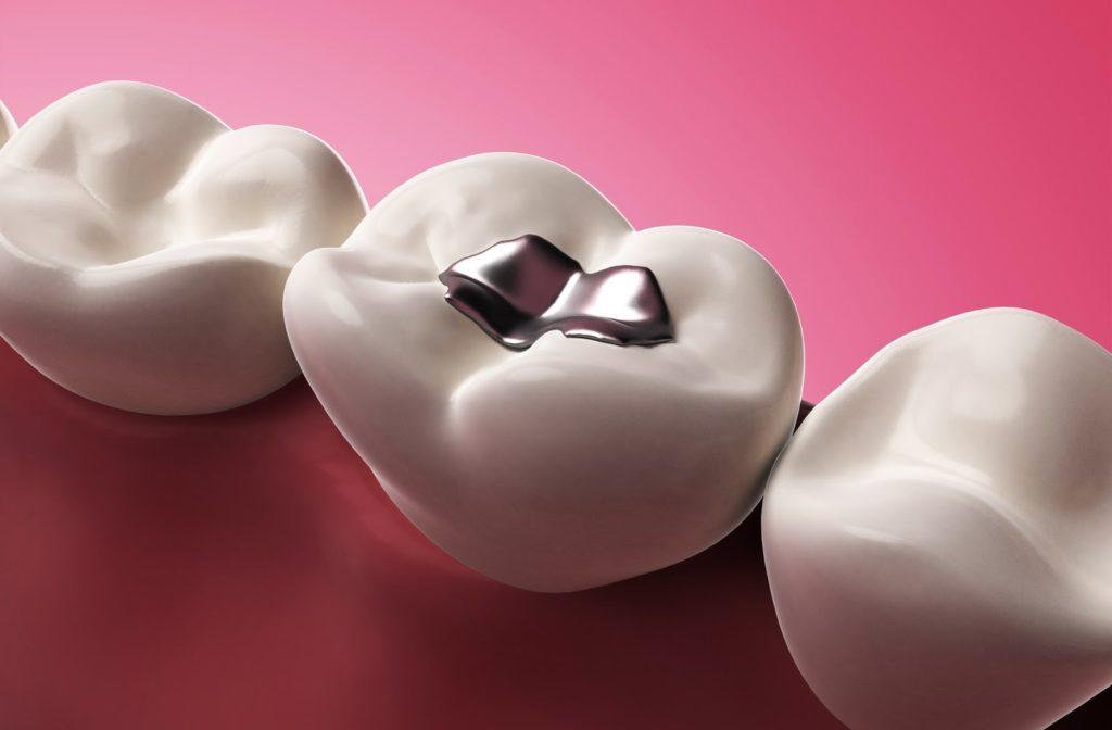 A 3 dimensional diagram of an amalgam dental filling