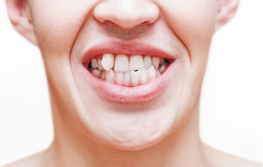 A person's mouth with crooked teeth, putting them at risk for gum disease