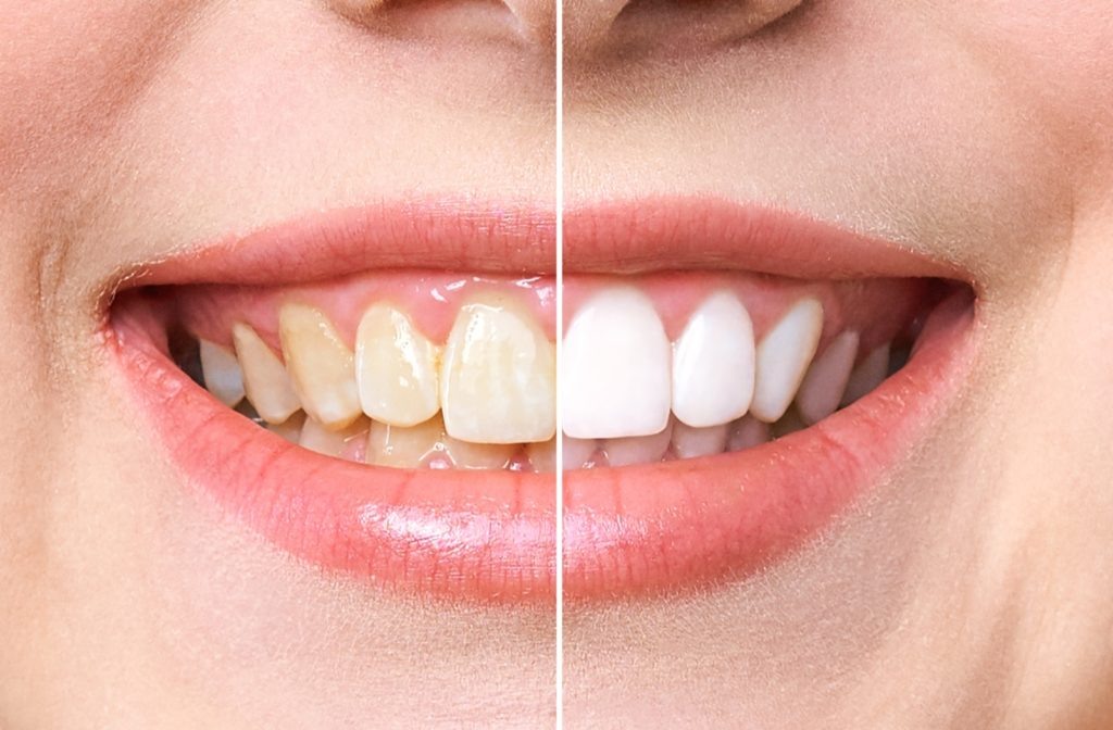 The before and after of a professional teeth whitening